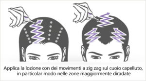 come applicare neogenic